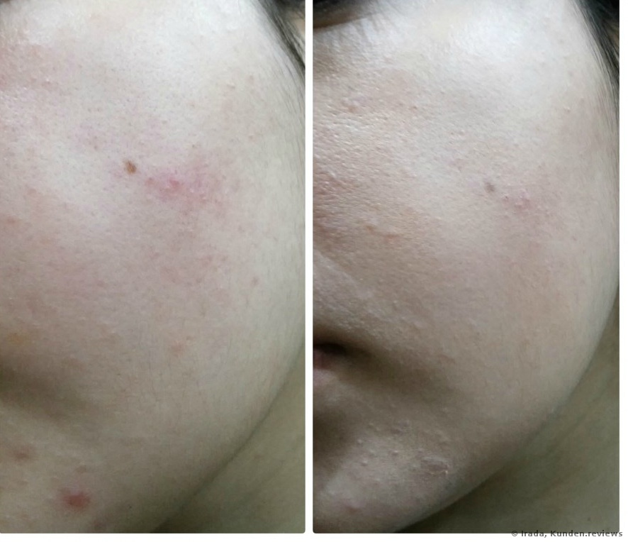Lavera 2in 1 Compact Foundation Before / After