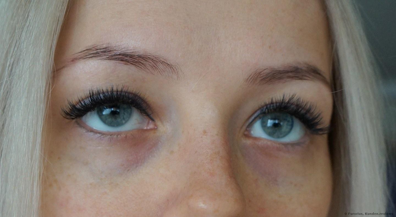 Meine Augenringe