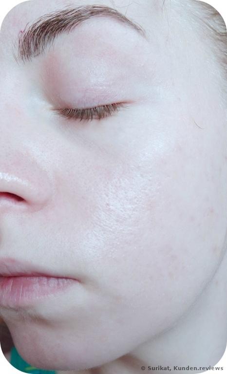 Clinique Liquid Facial Soap Mild Gesichtsseife - Nachher