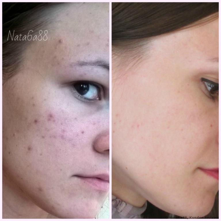 La Roche-Posay Effaclar K + Gesichtscreme