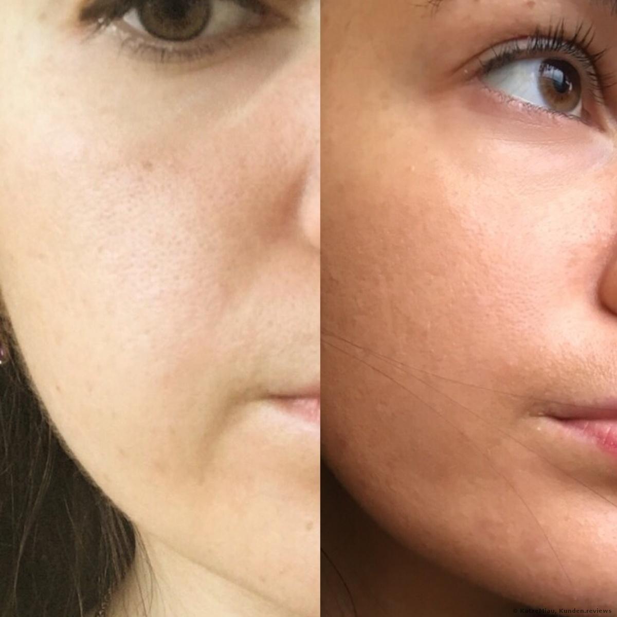 Vorher- und Nachher Foto nach 2 Monaten der Anwendung. Meine Haut ist erfrischt und ebener. Auf dem Foto ist es vielleicht nicht so sichtbar, aber für mich sind die Änderungen offenbar, denn ich liebe Selfies zu schießen und alle Änderungen zu merken.