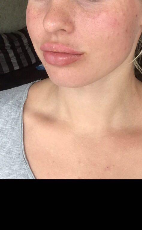 Lippenvergrößerung mit Hyaluronsäure  Foto