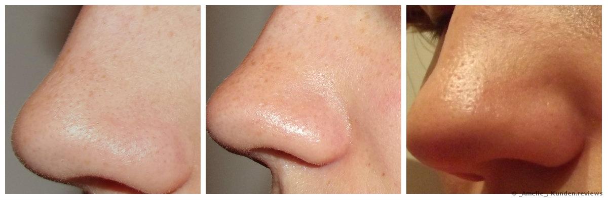 Vorher/ Nach der Maske/ Nach dem Nosestrip