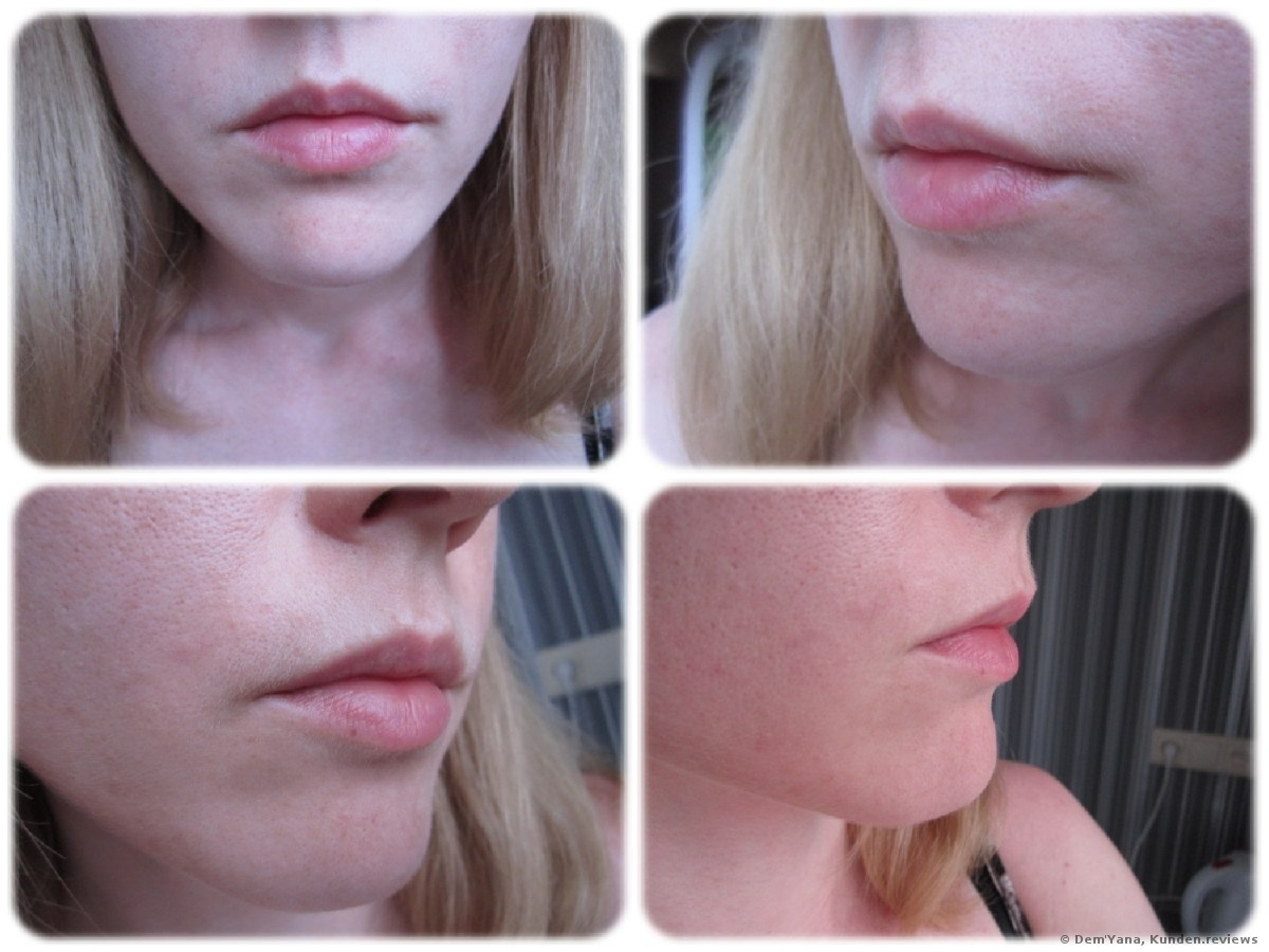 Juvederm Ultra 3 Lips Review   Lipstutorial org