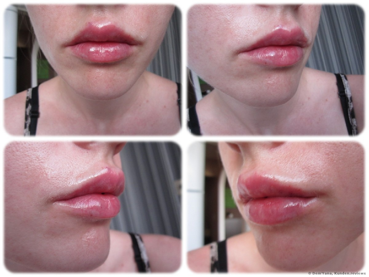 Juvederm Ultra 3 Lips Review | Lipstutorial org